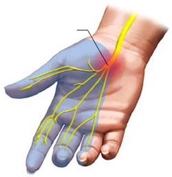 Carpal-Tunnel-Syndrome-distribution