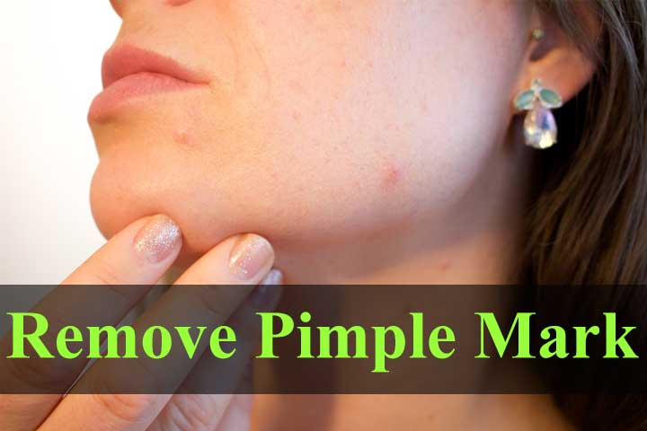 How to remove Pimple marks from face