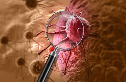 mesothelioma immunotherapy